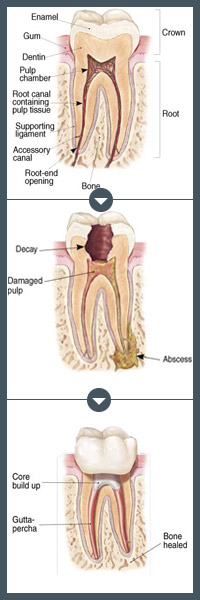 Root Canal Treatment Tooth Diagram